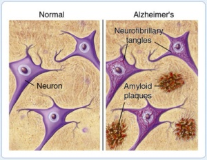 Plaques and Tangles in Alzheimer's Disease