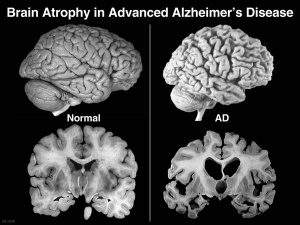 Healthy Brain vs Alzheimer's Disease Brain
