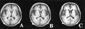 Progression of Lewy Body Dementia