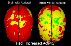 effects-adderall-on-brain