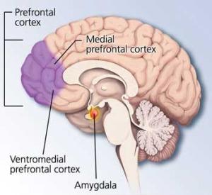 medial-prefrontal-cortex-rem-sleep-behavior-disorder