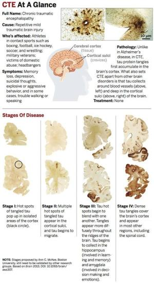 What CTE Does to The Brain