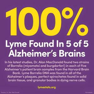 Misinformation on Alzheimer's Disease