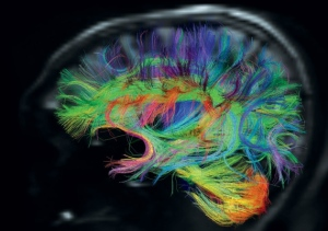 The neuroplasticity of the brain is negatively changed by overexposure to technology