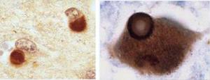 side by side microscopic view of Lewy Body proteins in Lewy Body dementia and Parkinson's Disease