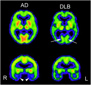The digital images on the left show the effects on the brain of Alzheimer's Disease. The images on the right show the effects of Lewy Body disease on the brain. Imagine the effect of these two degenerative neurological conditions occurring simultaneously.