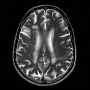 Scan showing vascular dementia in the brain