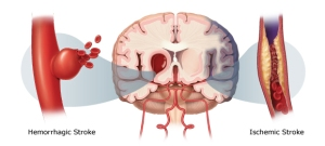 Stroke risks rise for everyone in the 48 hours after DST begins