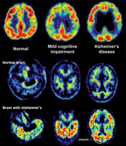 Pre-Diabetes & Type 2 Diabetes Cause the Plaques and Tangles of Alzheimer's Disease, Leading to Brain Shrinkage as the Diseases Progress