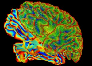 3D Image of Brain in Color