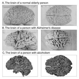 Elderly, Alzheimer's Disease, and alcoholic brains