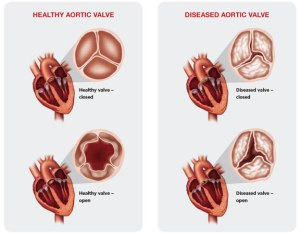 healthy vs failing aortic valve