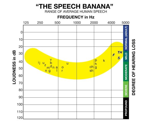 The Speech Banana - Hearing Frequency Ranges